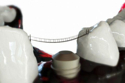 Proces zakładania implantów stomatologicznych, jak wygląda?