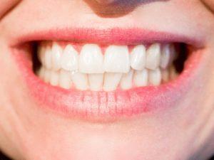 Piaskowanie zębów – wszystko, co musisz wiedzieć